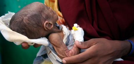 Five-month-old malnourished child awaits medical tests at the paediatric ward of the Banadir hospital in Somalia's capital Mogadishu